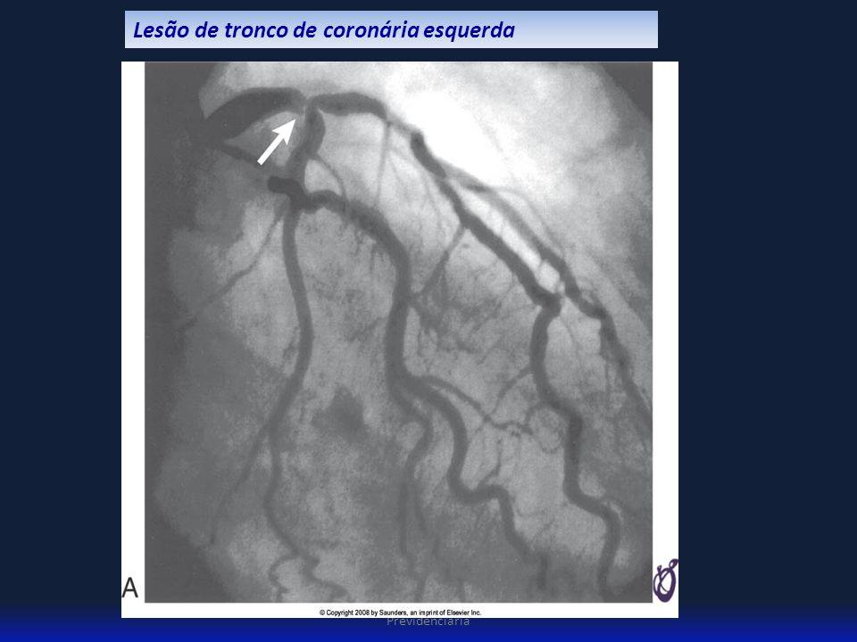 3º Congresso Brasileiro de Pericia Médica Previdenciária Lesão de tronco de coronária esquerda