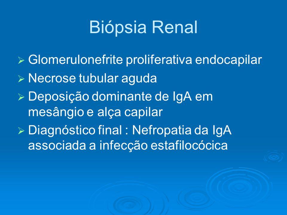 Biópsia Renal   Glomerulonefrite proliferativa endocapilar   Necrose tubular aguda   Deposição dominante de IgA em mesângio e alça capilar   Diagnóstico final : Nefropatia da IgA associada a infecção estafilocócica