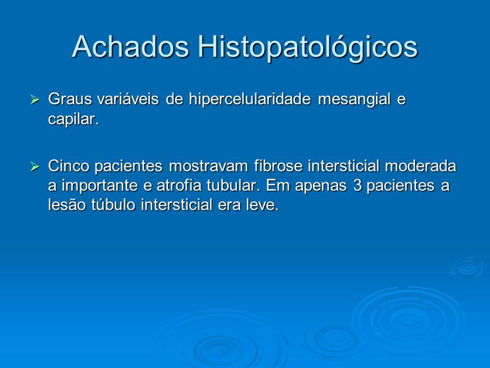 Achados Histopatológicos  Graus variáveis de hipercelularidade mesangial e capilar.
