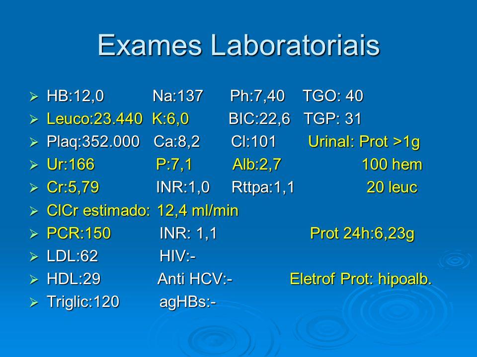 Exames Laboratoriais  HB:12,0 Na:137 Ph:7,40 TGO: 40  Leuco:23.440 K:6,0 BIC:22,6 TGP: 31  Plaq:352.000 Ca:8,2 Cl:101 UrinaI: Prot >1g  Ur:166 P:7,1 Alb:2,7 100 hem  Cr:5,79 INR:1,0 Rttpa:1,1 20 leuc  ClCr estimado: 12,4 ml/min  PCR:150 INR: 1,1 Prot 24h:6,23g  LDL:62 HIV:-  HDL:29 Anti HCV:- Eletrof Prot: hipoalb.