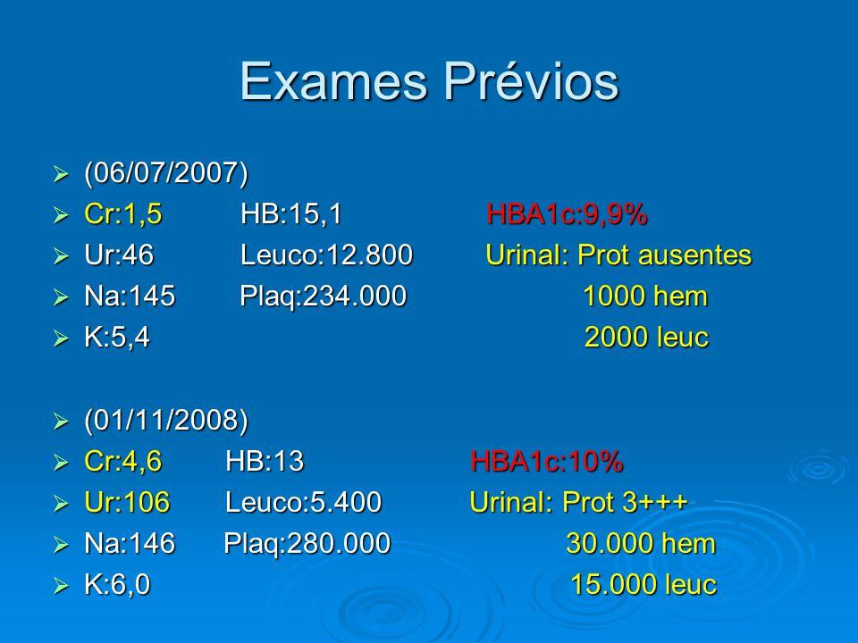 Exames Prévios  (06/07/2007)  Cr:1,5 HB:15,1 HBA1c:9,9%  Ur:46 Leuco:12.800 UrinaI: Prot ausentes  Na:145 Plaq:234.000 1000 hem  K:5,4 2000 leuc  (01/11/2008)  Cr:4,6 HB:13 HBA1c:10%  Ur:106 Leuco:5.400 UrinaI: Prot 3+++  Na:146 Plaq:280.000 30.000 hem  K:6,0 15.000 leuc