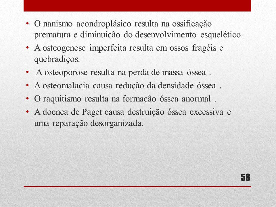 • O nanismo acondroplásico resulta na ossificação prematura e diminuição do desenvolvimento esquelético.