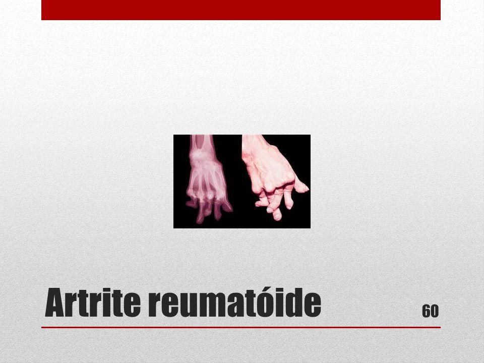 Artrite reumatóide 60