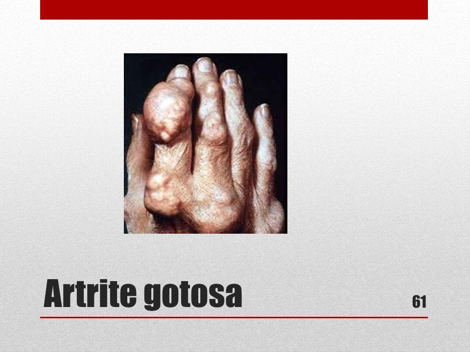 Artrite gotosa 61
