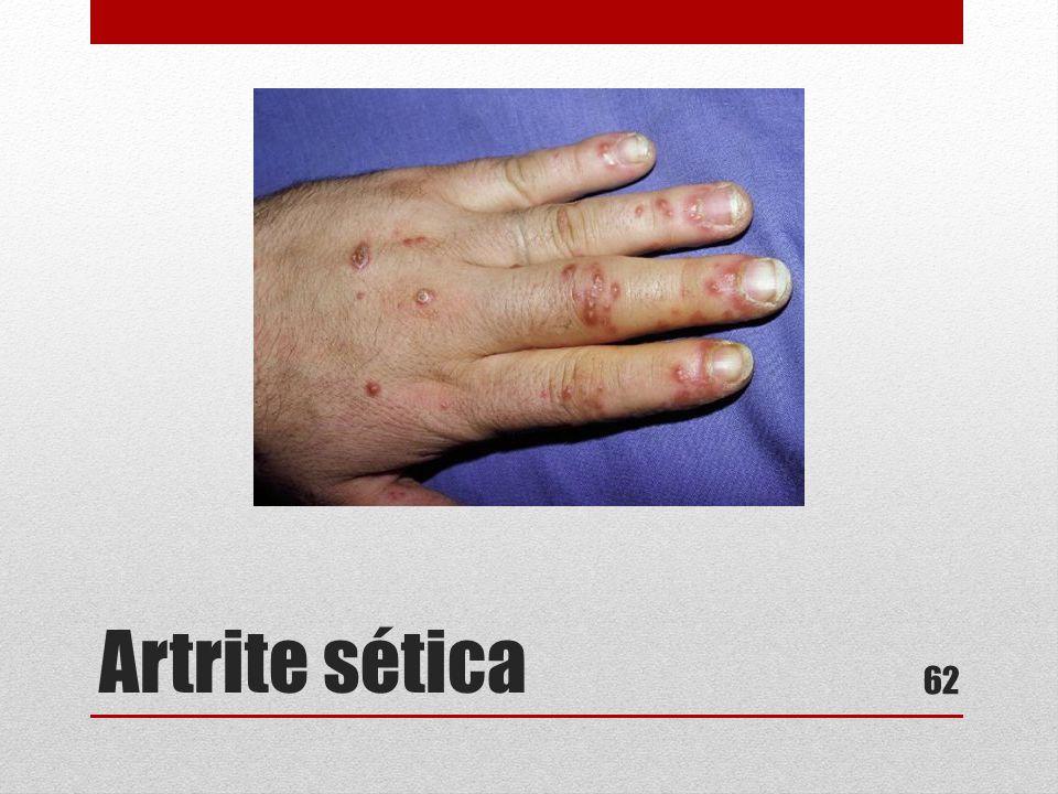 Artrite sética 62
