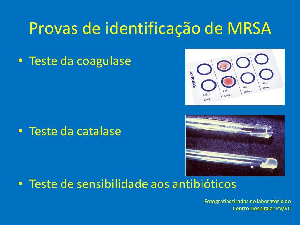 Provas de identificação de MRSA • Teste da coagulase • Teste da catalase • Teste de sensibilidade aos antibióticos Fotografias tiradas no laboratório