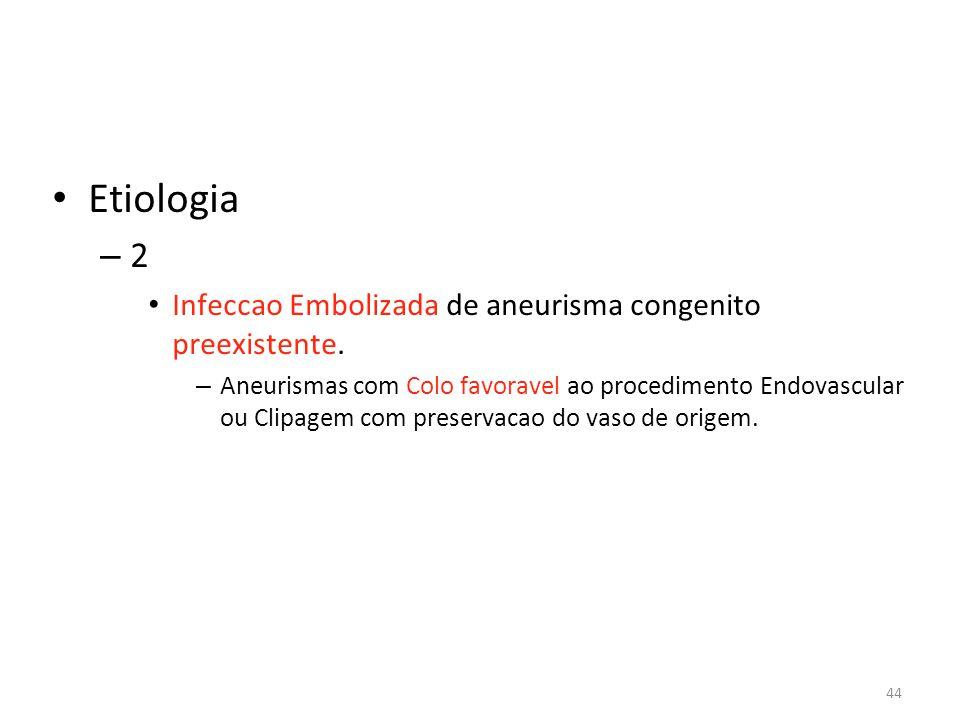 44 • Etiologia – 2 • Infeccao Embolizada de aneurisma congenito preexistente. – Aneurismas com Colo favoravel ao procedimento Endovascular ou Clipagem