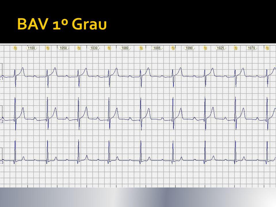  Geralmente assintomático  Alentecimento na condução AV  PR> 200ms (5mm)  Pode ser supra, intra ou infrassiniano (avaliar QRS)  15% pctes pós IAM