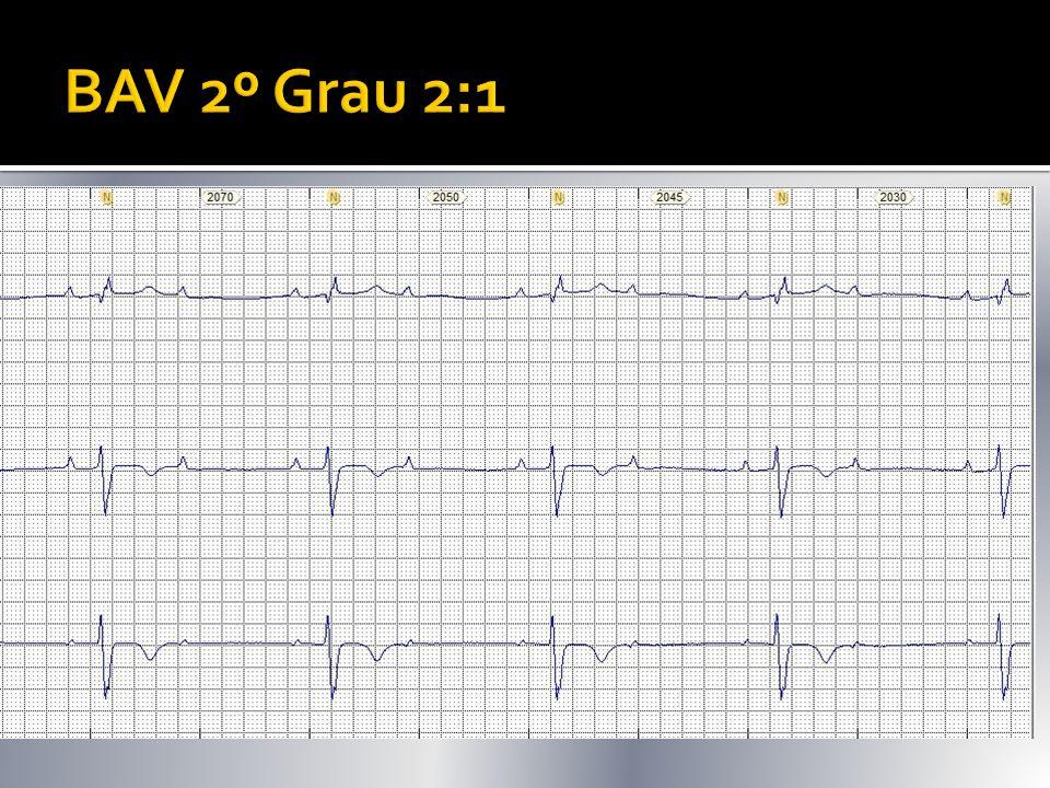  A cada 2 P 1 é bloqueada  1 QRS: 2 P  Supra, intra ou infraHissiniano?  Estudo Eletrofisiológico: Cateter multipolar detecta potenciais provenien