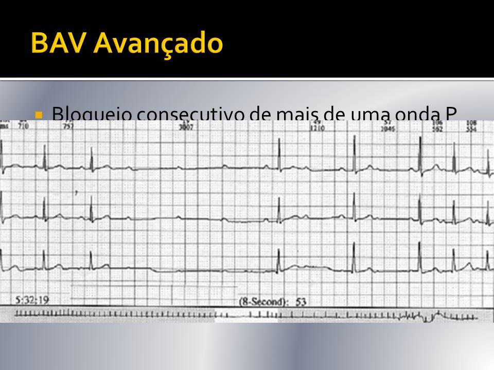  Bloqueio consecutivo de mais de uma onda P  P/QRS 3:1, 4:1