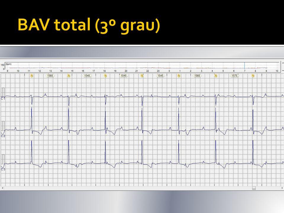  Dois ritmos isolados/dissociados: NSA inicia estímulo atrial (há ondas P) e o ritmo ventricular é iniciado por escapes juncionais ou ventriculares (