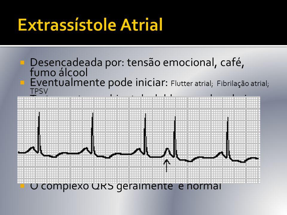  Desencadeada por: tensão emocional, café, fumo álcool  Eventualmente pode iniciar: Flutter atrial; Fibrilação atrial; TPSV  Tratamento: ambiental