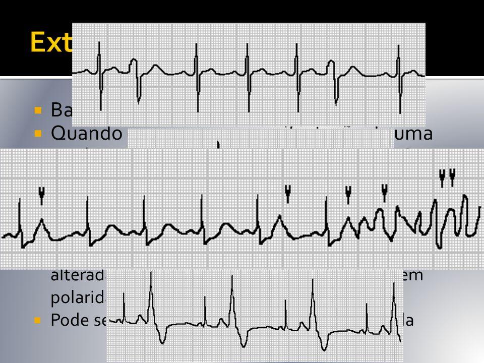  Batimento precoce de origem ventricular  Quando ocorre como manifestação de uma cardiopatia pode aumentar o risco de MS  Nas SCA pode levar a FV 