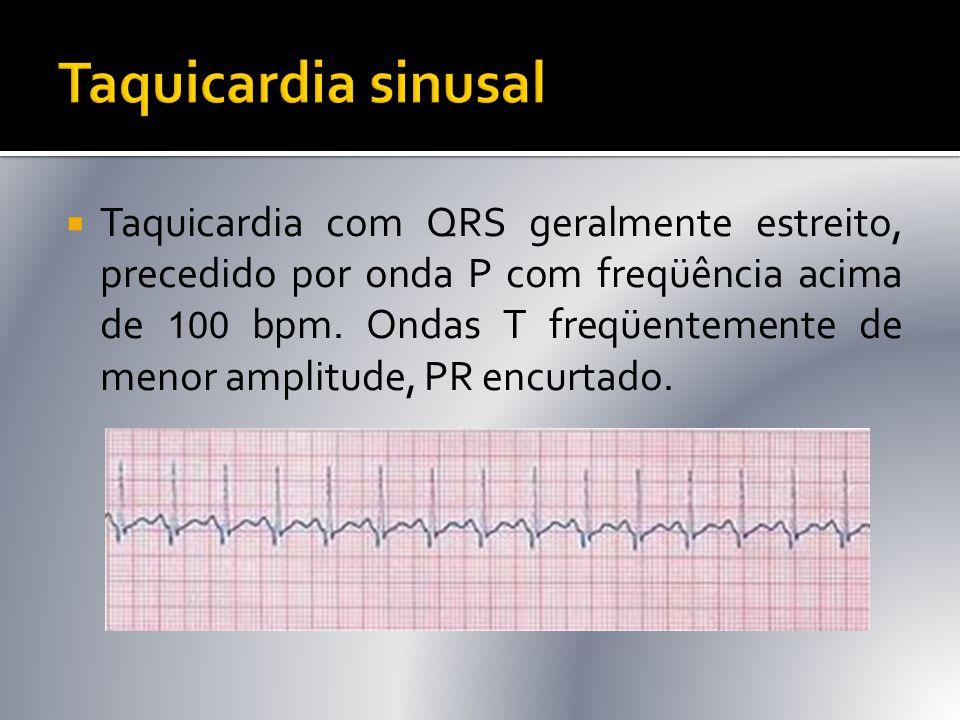  Taquicardia com QRS geralmente estreito, precedido por onda P com freqüência acima de 100 bpm. Ondas T freqüentemente de menor amplitude, PR encurta