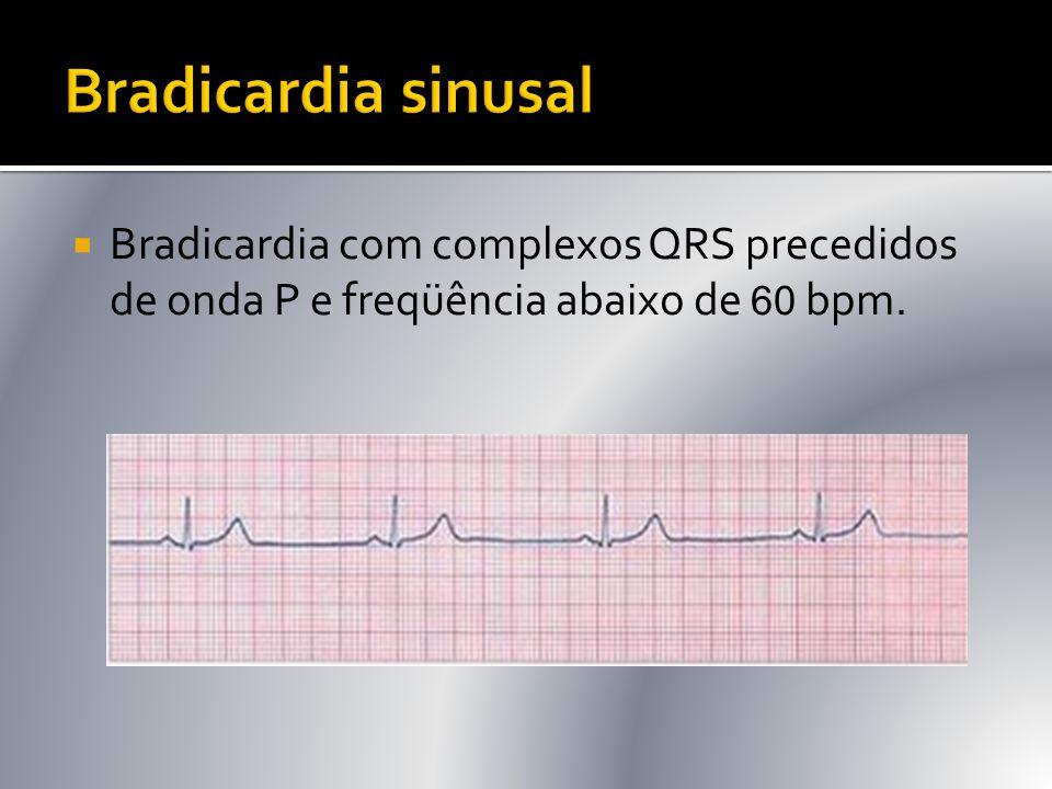  Bradicardia com complexos QRS precedidos de onda P e freqüência abaixo de 60 bpm.