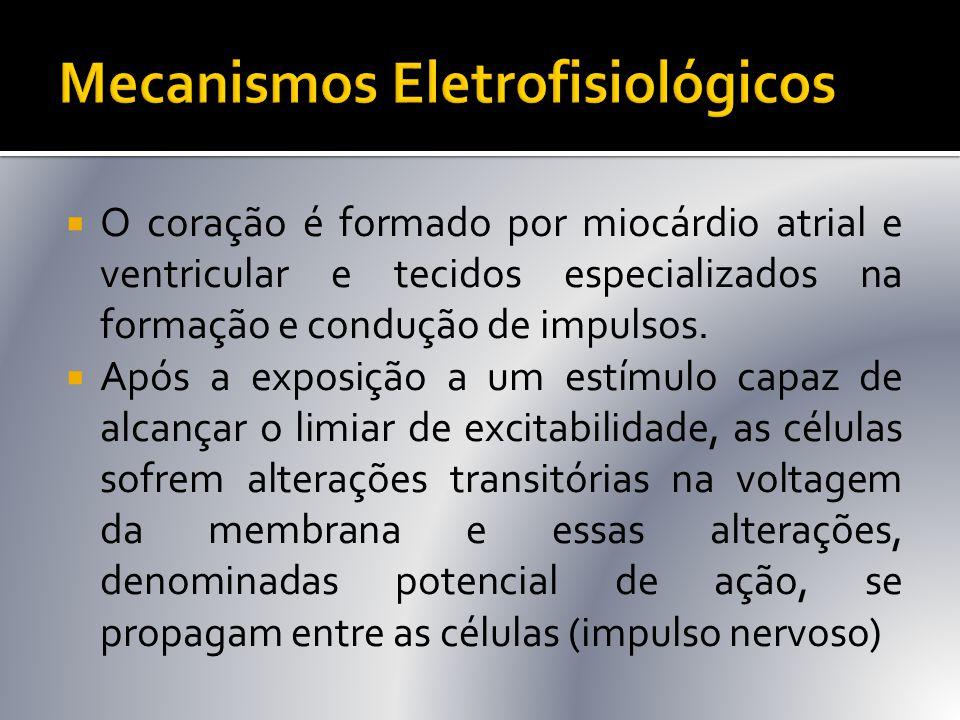  Menos comum  Mesmos fatores desencadeantes  Mesmos critérios p/ tto  Diagnóstico ECG:  Ritmo irregular  P' negativa em D 2, D 3, aVF (despolarização atrial retrógrada)  P' Pode ocorrer antes, durante ou após o QRS, dependendo do local de origem da extrasssístole no nó AV  P' Pode estar ausente  O complexo QRS geralmente é normal
