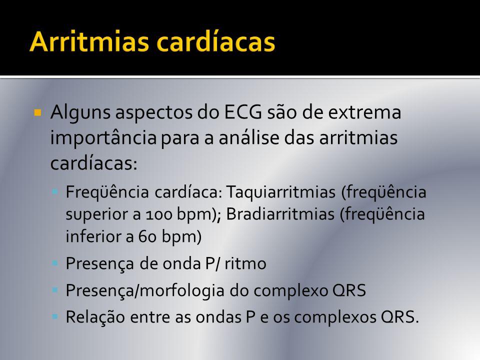  Alguns aspectos do ECG são de extrema importância para a análise das arritmias cardíacas:  Freqüência cardíaca: Taquiarritmias (freqüência superior