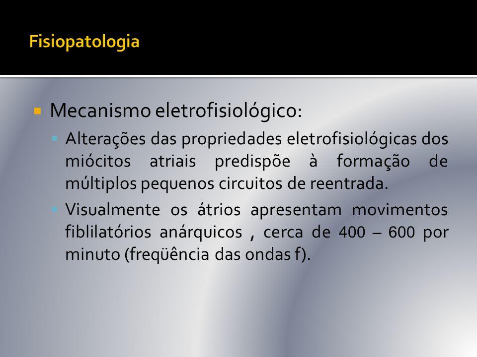  Mecanismo eletrofisiológico:  Alterações das propriedades eletrofisiológicas dos miócitos atriais predispõe à formação de múltiplos pequenos circui