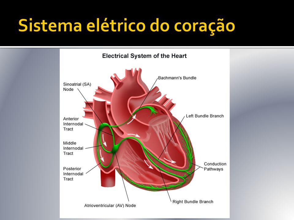  Definição eletrocardiográfica:  Freqüência cardíaca geralmente entre 90 – 170 bpm;  Irregularidade do intervalo R-R;  Ausência de onda P ou qualquer atividade elétrica atrial regular.