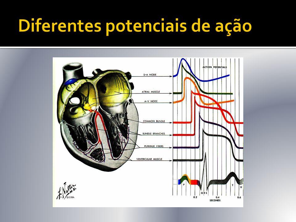  TV polimórfica com intervalo QT normal (em ritmo sinusal): quase sempre é decorrente de isquemia miocárdica aguda grave.