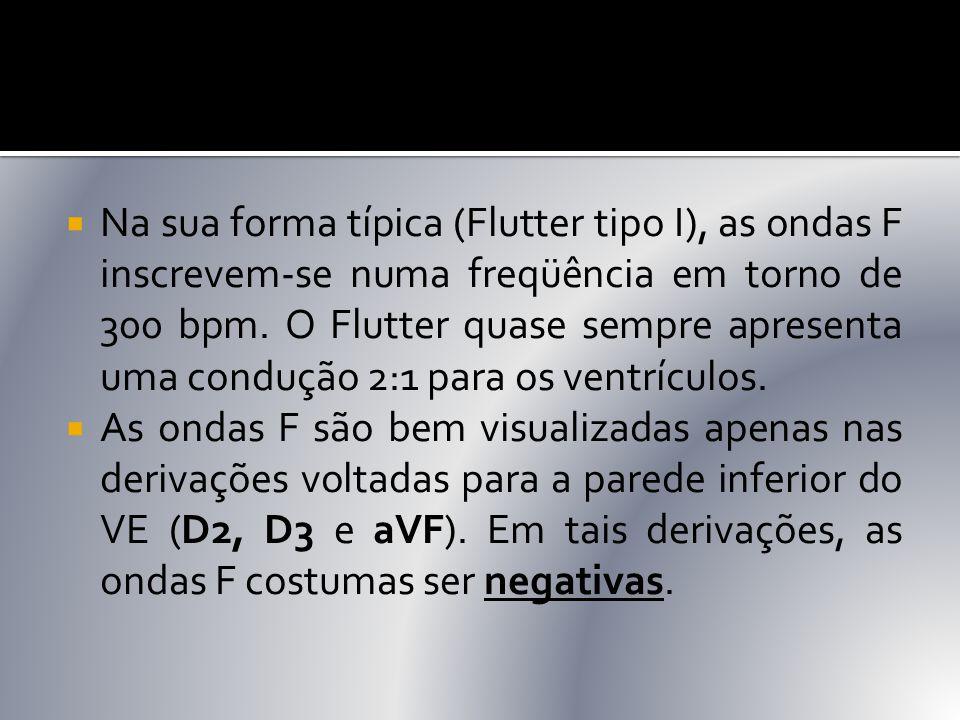  Na sua forma típica (Flutter tipo I), as ondas F inscrevem-se numa freqüência em torno de 300 bpm. O Flutter quase sempre apresenta uma condução 2:1