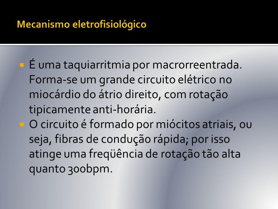  É uma taquiarritmia por macrorreentrada. Forma-se um grande circuito elétrico no miocárdio do átrio direito, com rotação tipicamente anti-horária. 