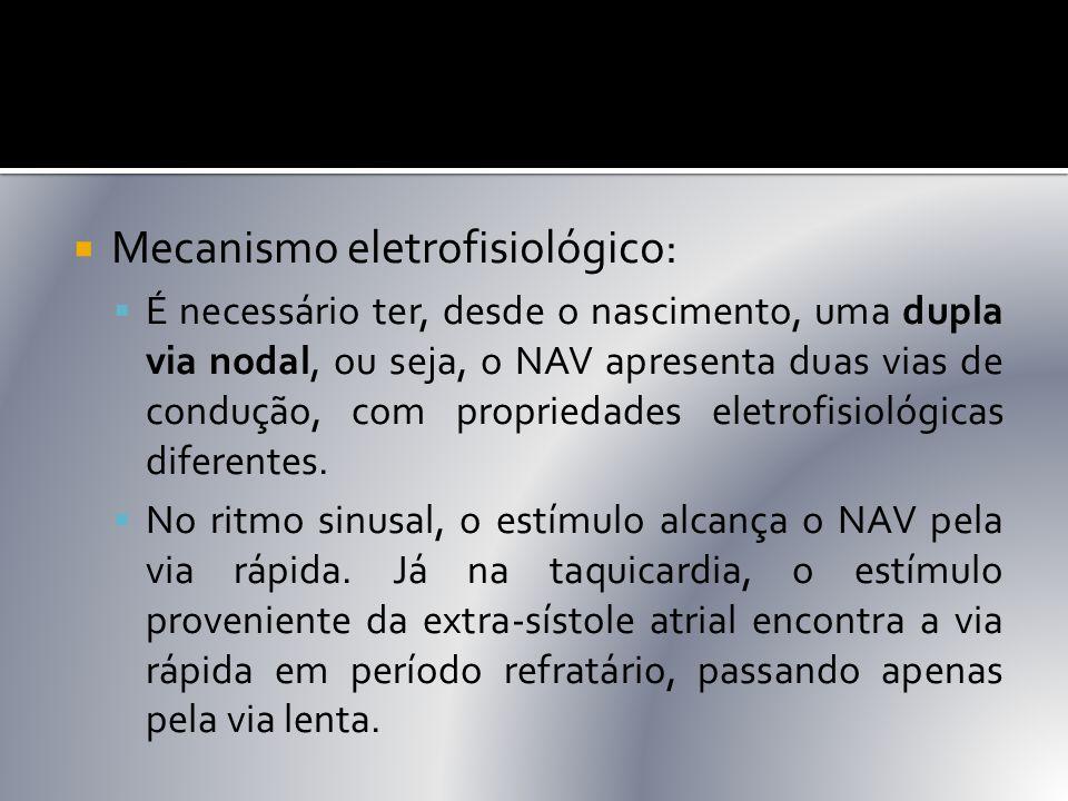  Mecanismo eletrofisiológico:  É necessário ter, desde o nascimento, uma dupla via nodal, ou seja, o NAV apresenta duas vias de condução, com propri