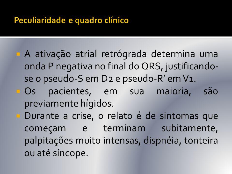  A ativação atrial retrógrada determina uma onda P negativa no final do QRS, justificando- se o pseudo-S em D2 e pseudo-R' em V1.  Os pacientes, em