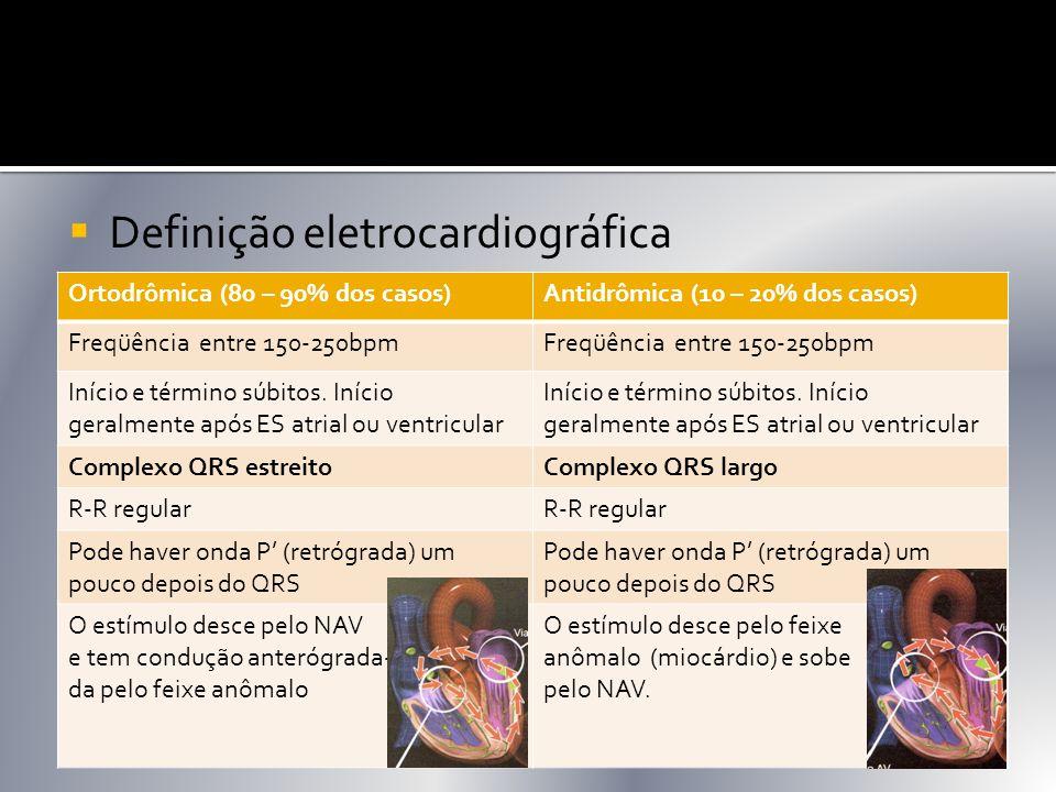 Ortodrômica (80 – 90% dos casos)Antidrômica (10 – 20% dos casos) Freqüência entre 150-250bpm Início e término súbitos. Início geralmente após ES atria