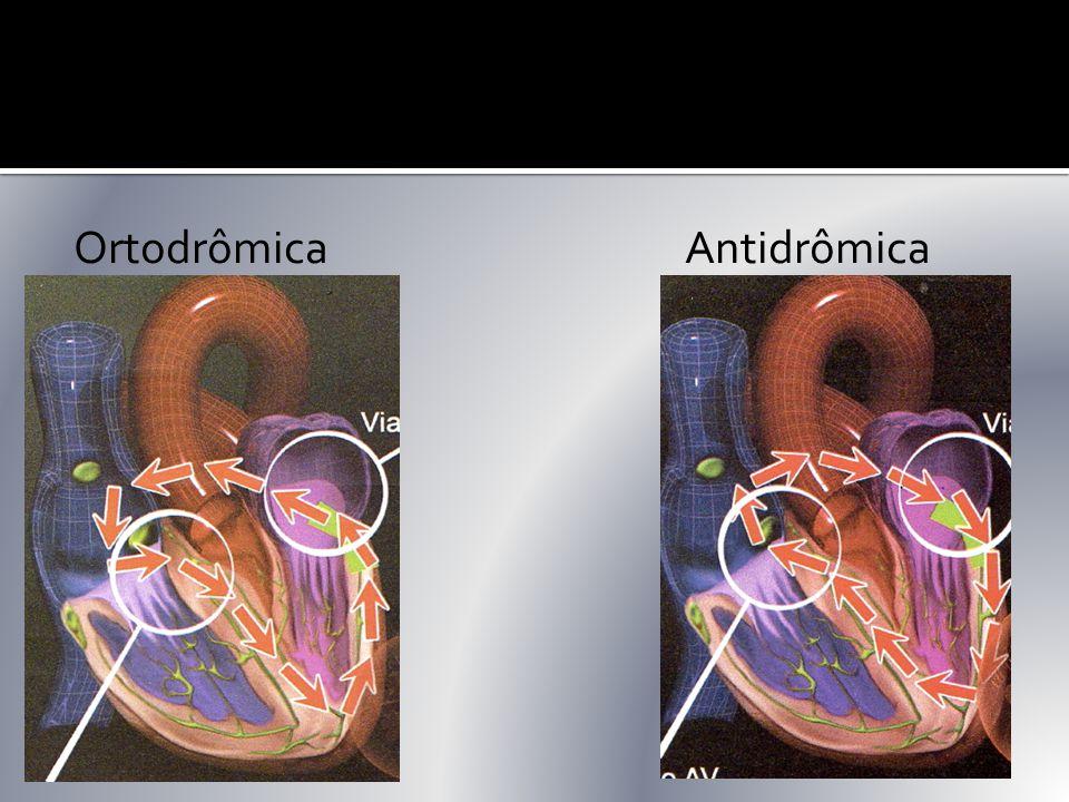 Ortodrômica Antidrômica