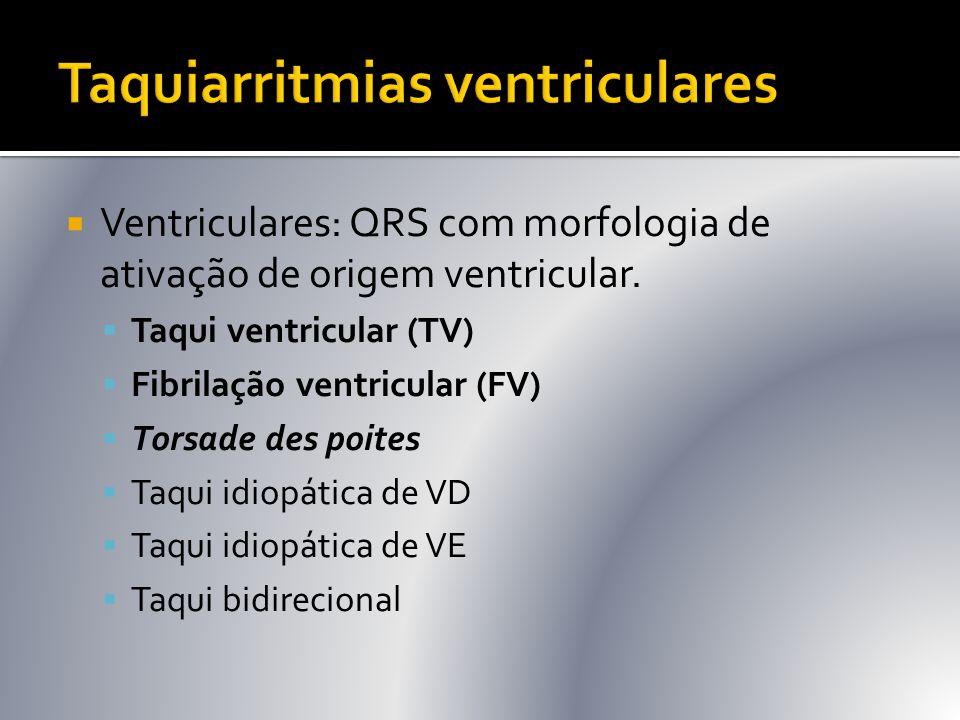  Ventriculares: QRS com morfologia de ativação de origem ventricular.  Taqui ventricular (TV)  Fibrilação ventricular (FV)  Torsade des poites  T