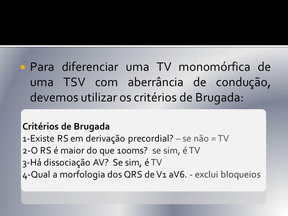  Para diferenciar uma TV monomórfica de uma TSV com aberrância de condução, devemos utilizar os critérios de Brugada: Critérios de Brugada 1-Existe R