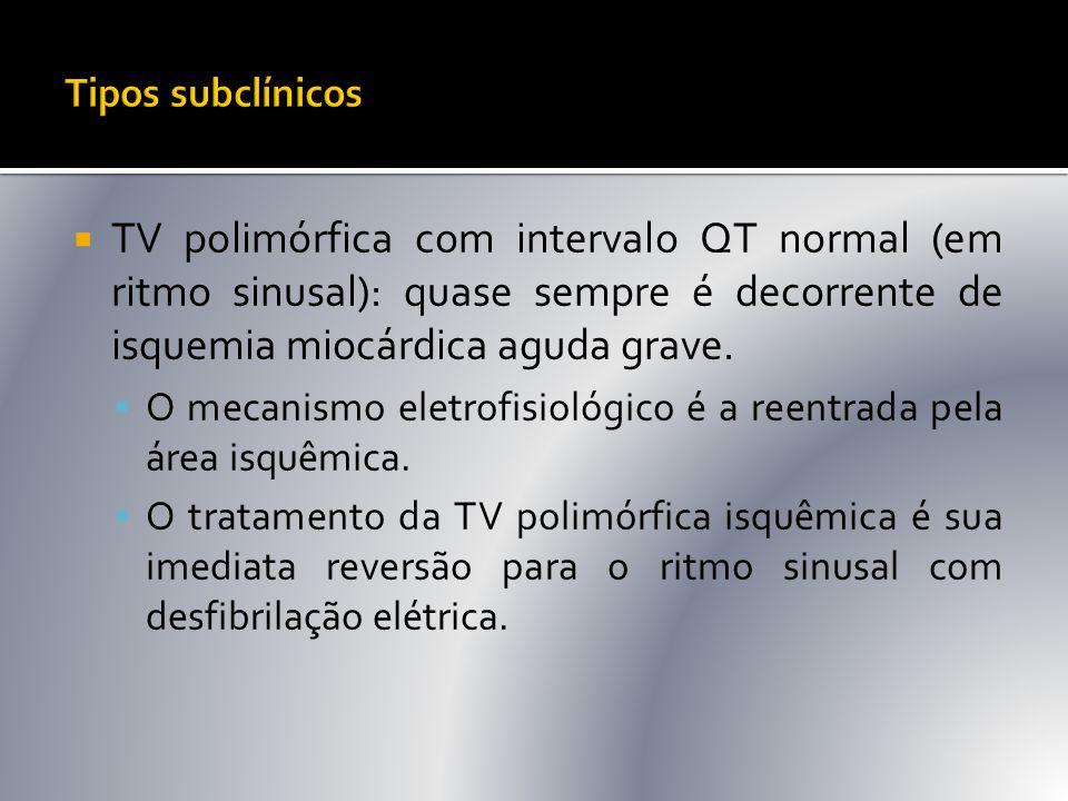  TV polimórfica com intervalo QT normal (em ritmo sinusal): quase sempre é decorrente de isquemia miocárdica aguda grave.  O mecanismo eletrofisioló