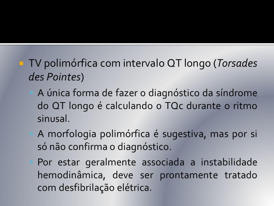  TV polimórfica com intervalo QT longo (Torsades des Pointes)  A única forma de fazer o diagnóstico da síndrome do QT longo é calculando o TQc duran
