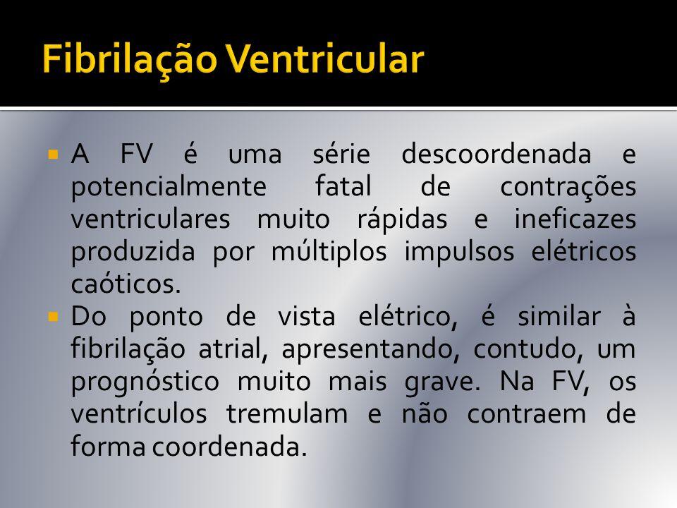  A FV é uma série descoordenada e potencialmente fatal de contrações ventriculares muito rápidas e ineficazes produzida por múltiplos impulsos elétri