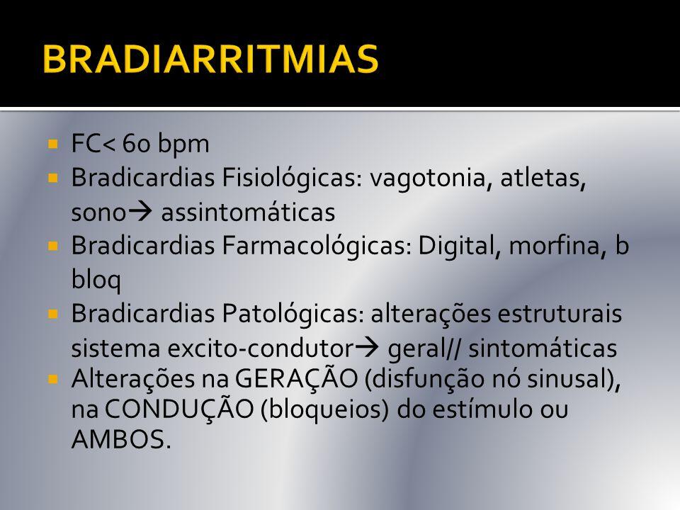  FC< 60 bpm  Bradicardias Fisiológicas: vagotonia, atletas, sono  assintomáticas  Bradicardias Farmacológicas: Digital, morfina, b bloq  Bradicar