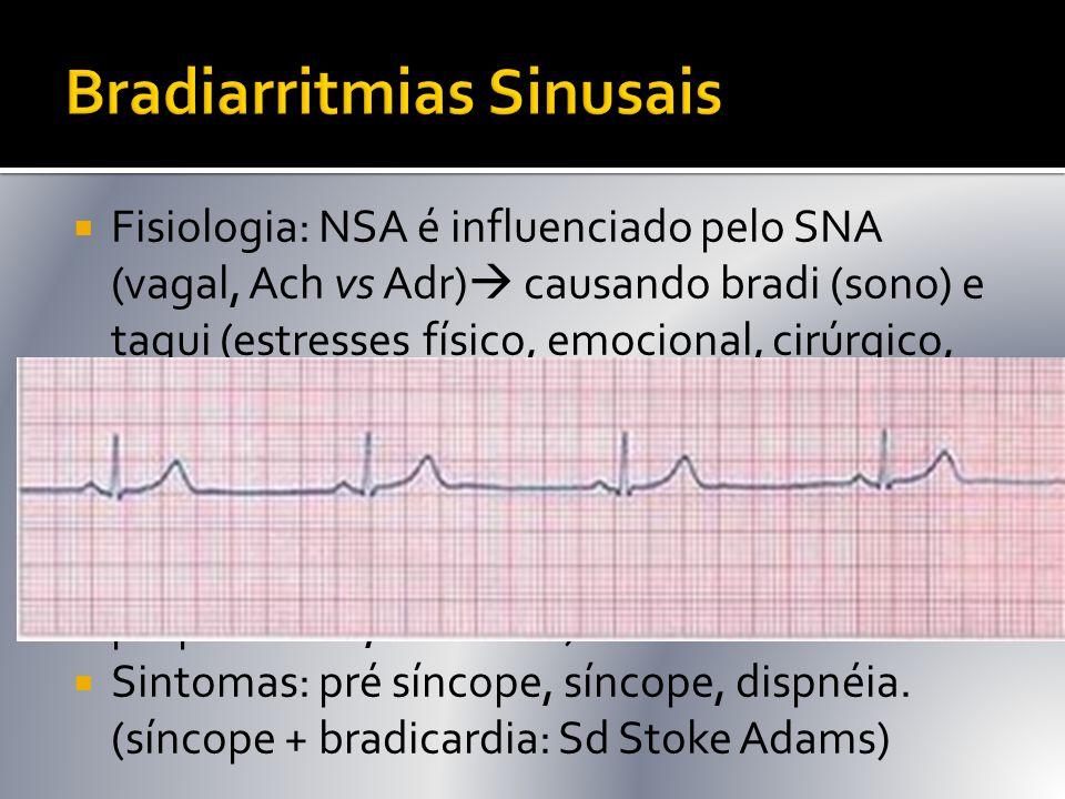  Fisiologia: NSA é influenciado pelo SNA (vagal, Ach vs Adr)  causando bradi (sono) e taqui (estresses físico, emocional, cirúrgico, infeccioso). 