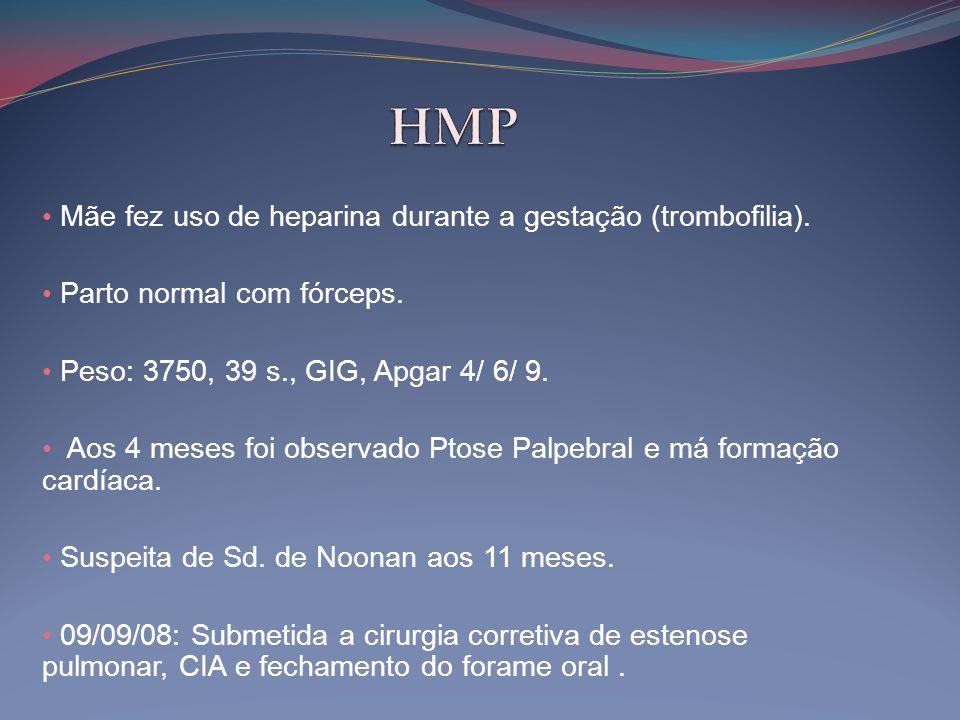 • Mãe fez uso de heparina durante a gestação (trombofilia). • Parto normal com fórceps. • Peso: 3750, 39 s., GIG, Apgar 4/ 6/ 9. • Aos 4 meses foi obs