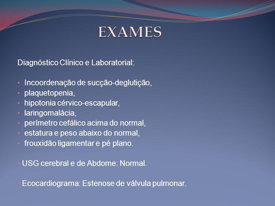 Diagnóstico Clínico e Laboratorial: • Incoordenação de sucção-deglutição, • plaquetopenia, • hipotonia cérvico-escapular, • laringomalácia, • perímetr