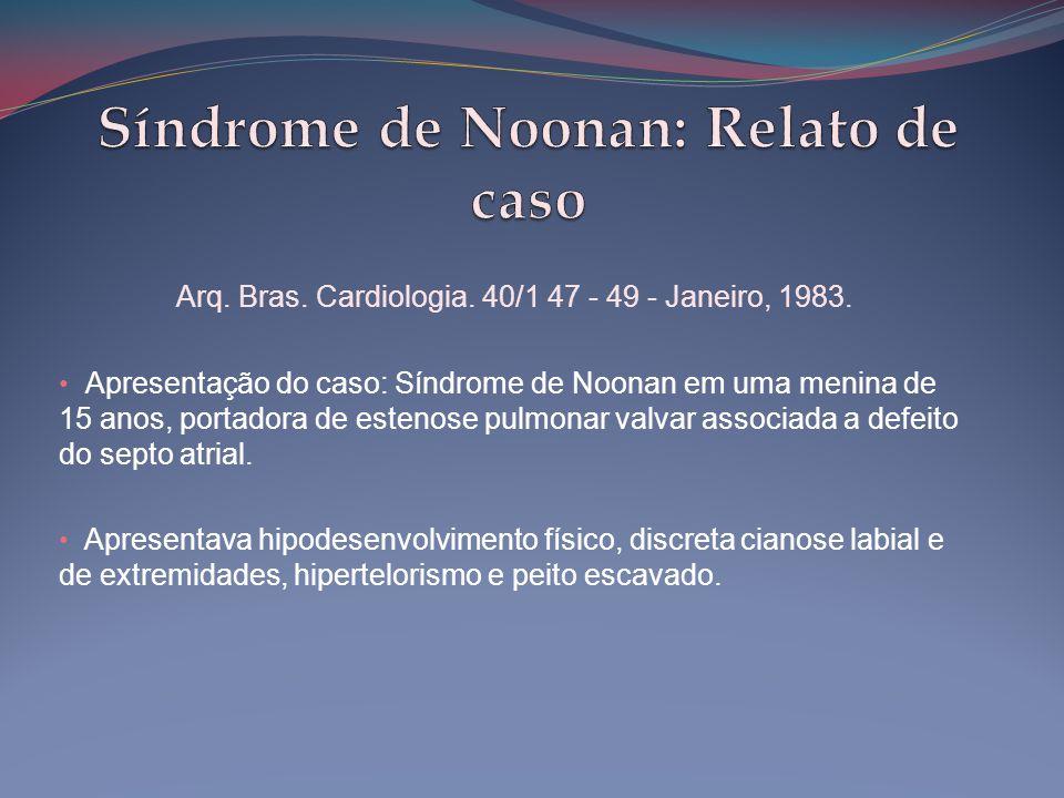 Arq. Bras. Cardiologia. 40/1 47 - 49 - Janeiro, 1983. • Apresentação do caso: Síndrome de Noonan em uma menina de 15 anos, portadora de estenose pulmo