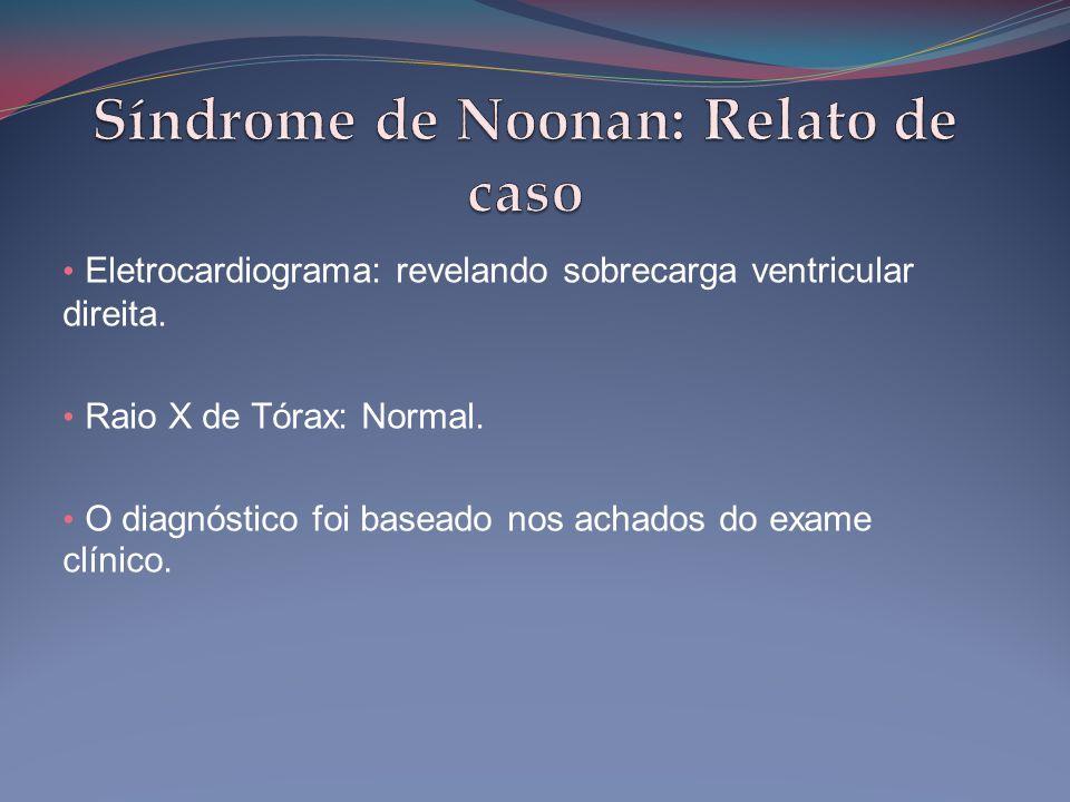 • Eletrocardiograma: revelando sobrecarga ventricular direita. • Raio X de Tórax: Normal. • O diagnóstico foi baseado nos achados do exame clínico.