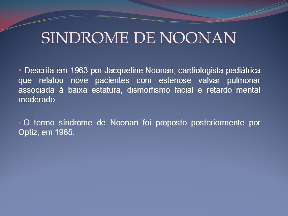 SINDROME DE NOONAN • Descrita em 1963 por Jacqueline Noonan, cardiologista pediátrica que relatou nove pacientes com estenose valvar pulmonar associad