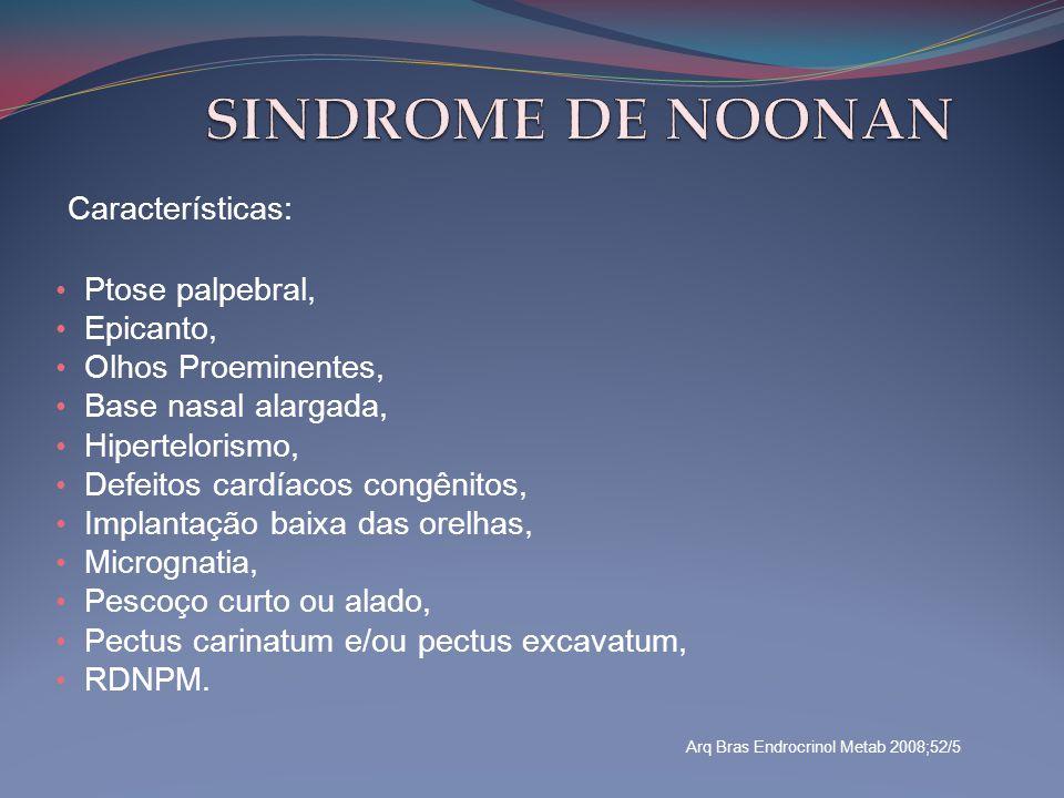 Características: • Ptose palpebral, • Epicanto, • Olhos Proeminentes, • Base nasal alargada, • Hipertelorismo, • Defeitos cardíacos congênitos, • Impl