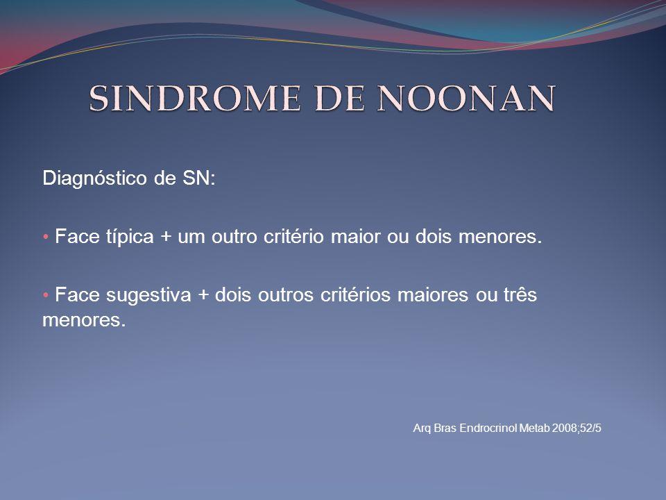 Diagnóstico de SN: • Face típica + um outro critério maior ou dois menores. • Face sugestiva + dois outros critérios maiores ou três menores. Arq Bras