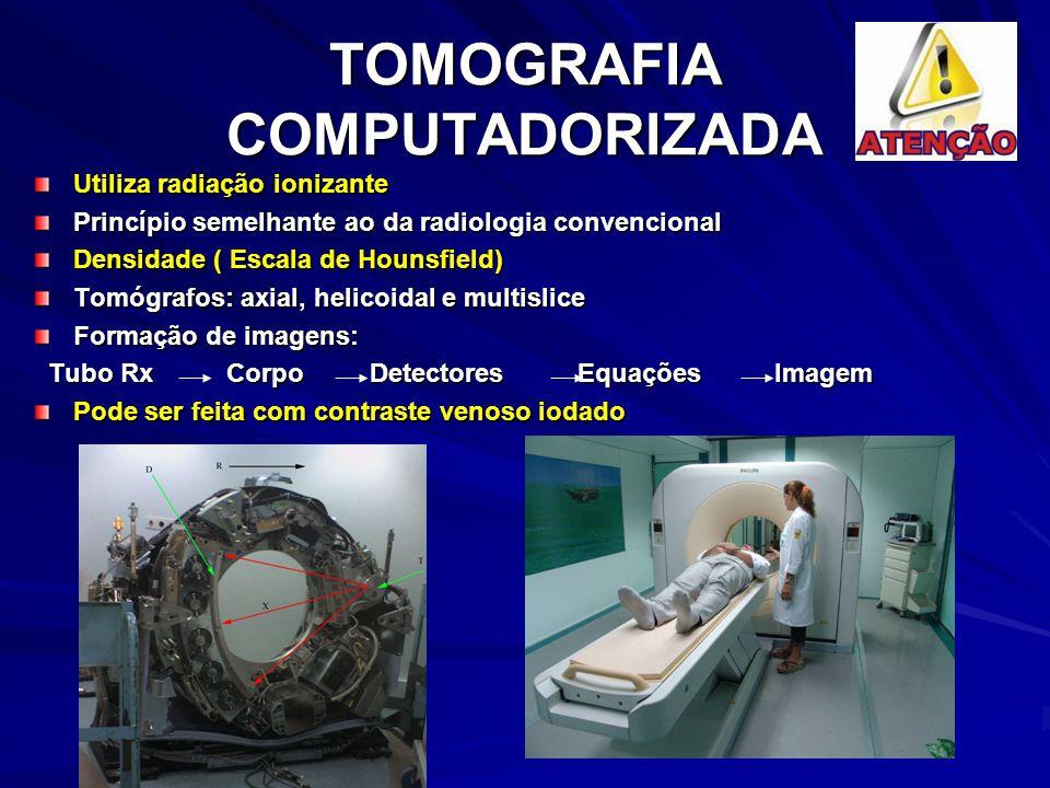 TOMOGRAFIA COMPUTADORIZADA Utiliza radiação ionizante Princípio semelhante ao da radiologia convencional Densidade ( Escala de Hounsfield) Tomógrafos: axial, helicoidal e multislice Formação de imagens: Tubo Rx Corpo Detectores Equações Imagem Tubo Rx Corpo Detectores Equações Imagem Pode ser feita com contraste venoso iodado