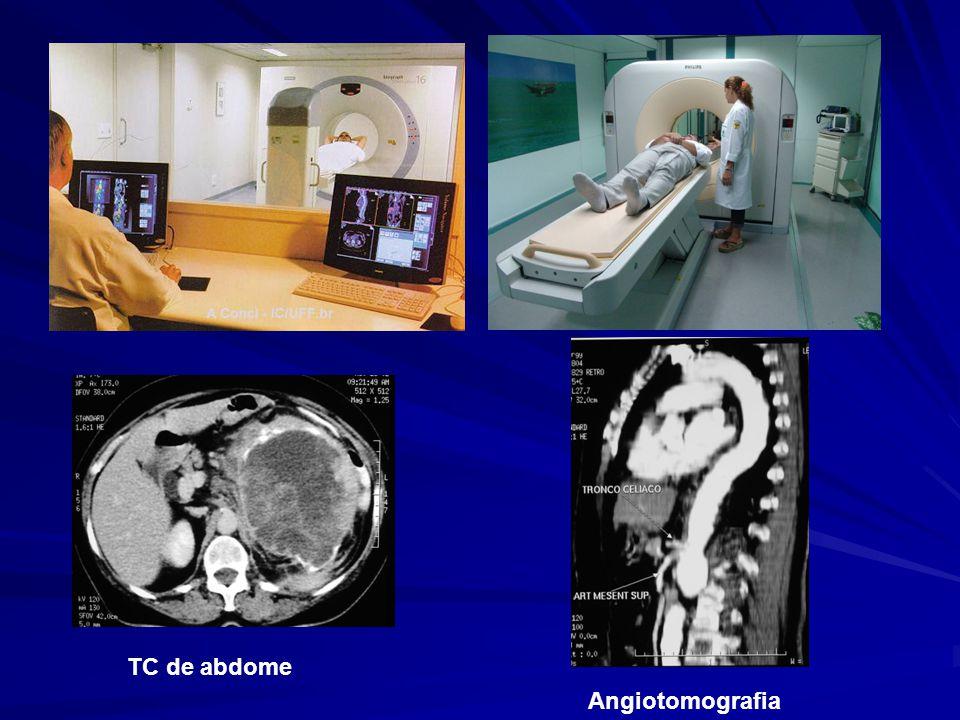 Angiotomografia TC de abdome