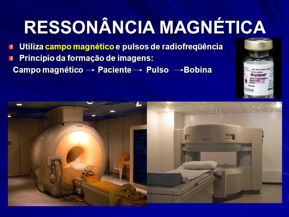 RESSONÂNCIA MAGNÉTICA Utiliza campo magnético e pulsos de radiofreqüência Princípio da formação de imagens: Campo magnético Paciente Pulso Bobina Campo magnético Paciente Pulso Bobina