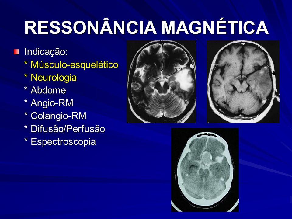 RESSONÂNCIA MAGNÉTICA Indicação: * Músculo-esquelético * Músculo-esquelético * Neurologia * Neurologia * Abdome * Abdome * Angio-RM * Angio-RM * Colangio-RM * Colangio-RM * Difusão/Perfusão * Difusão/Perfusão * Espectroscopia * Espectroscopia