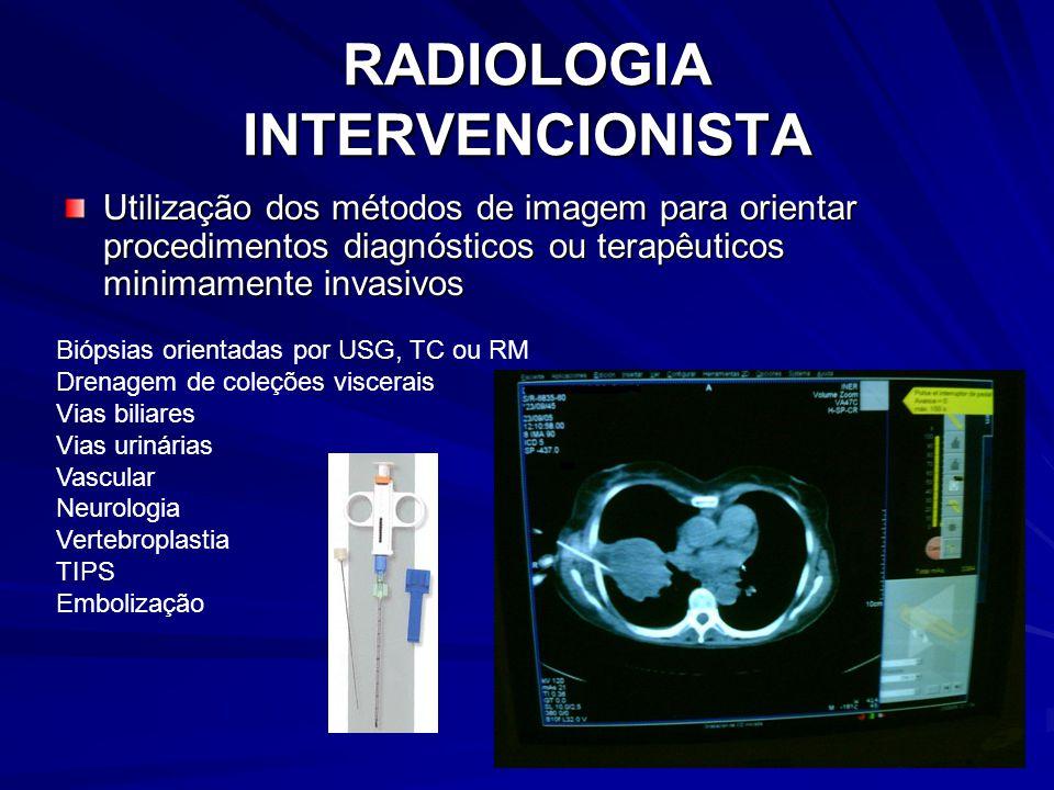 RADIOLOGIA INTERVENCIONISTA Utilização dos métodos de imagem para orientar procedimentos diagnósticos ou terapêuticos minimamente invasivos Biópsias orientadas por USG, TC ou RM Drenagem de coleções viscerais Vias biliares Vias urinárias Vascular Neurologia Vertebroplastia TIPS Embolização