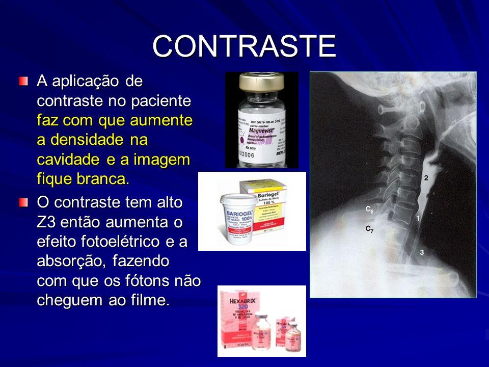 CONTRASTE A aplicação de contraste no paciente faz com que aumente a densidade na cavidade e a imagem fique branca. O contraste tem alto Z3 então aume